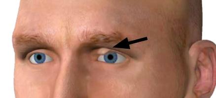 Kleine verhärtete Schwellungen an den oberen Augenlidern weisen in der Antlitzdiagnostik auf eine Cholesterinstörung hin.