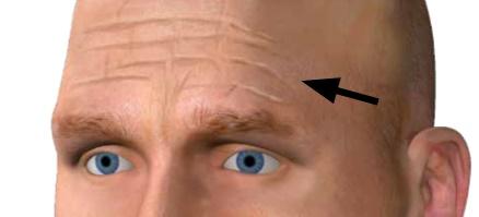 Mit Hilfe der Antlitzdiagnose lassen sich Leberschäden am Gesicht erkennen.