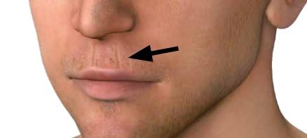 Kleine Fältchen über dem Mund weisen mittels Antlitsdiagnose auf Magenprobleme hin.