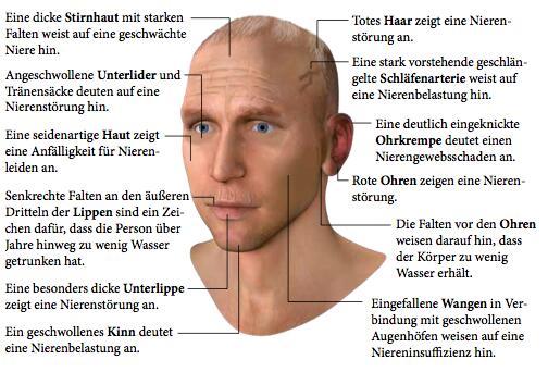 Unser Gesicht zeigt spezifische Antlitzzeichen, wenn unsere Niere belastet ist.
