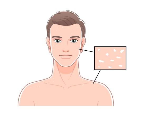 Die Hautdiagnostik ist eine Form der Antlitzdiagnose, bei der vor allem der Zustand und die Beschaffenheit der Haut untersucht wird. (Grafik: mvg-Verlag)